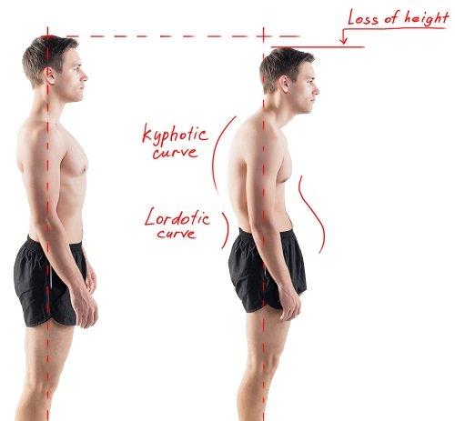 Postura corretta Tecnica Alexander